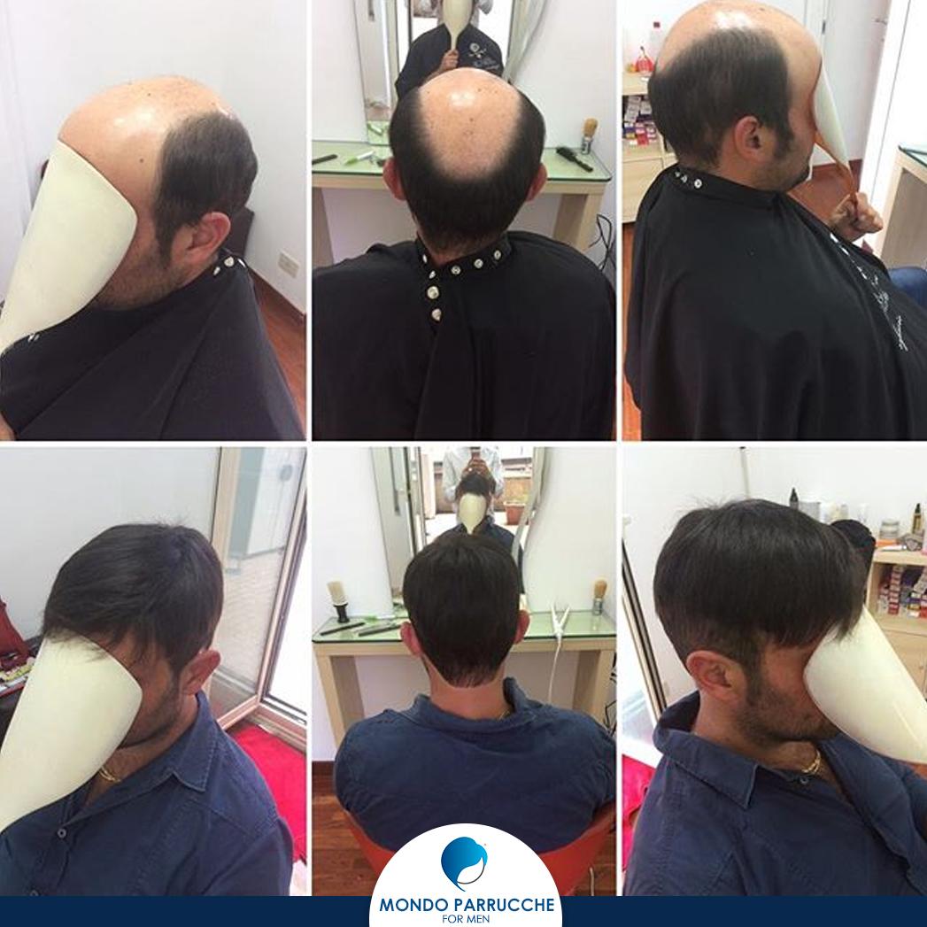 Protesi capillari uomo - Mondo Parrucche For Men - Catania