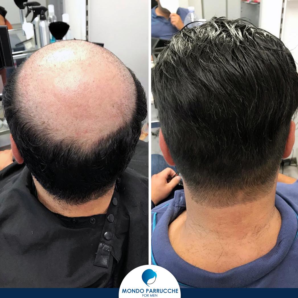 Impianti capelli uomo - Mondo Parrucche For Men - Catania