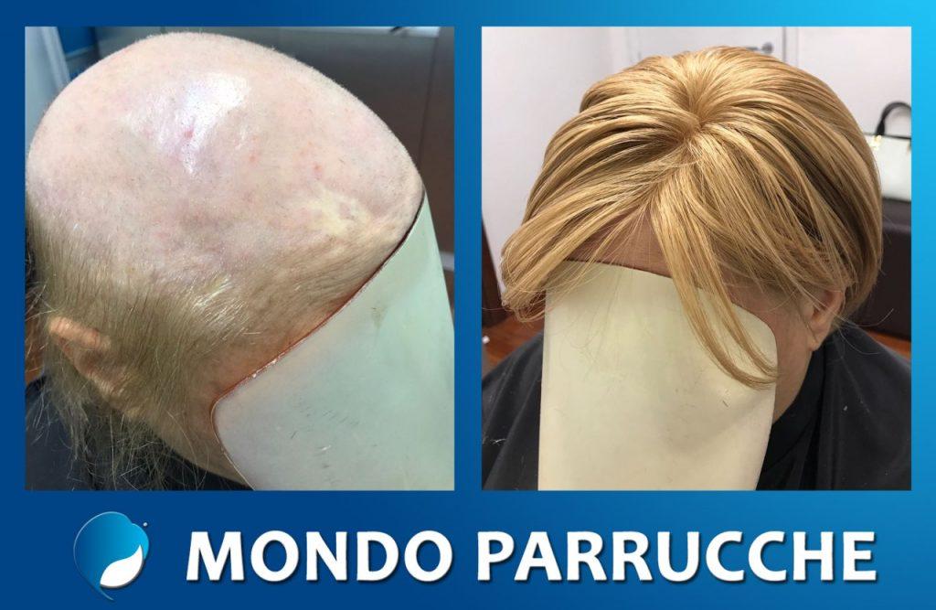 Signora protesi donna - Mondo Parrucche Catania - Alopecia