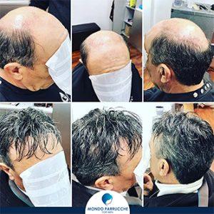 Protesi capelli uomo